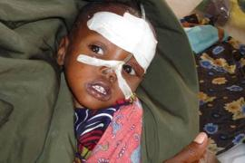 Little girl in the SOS medical centre